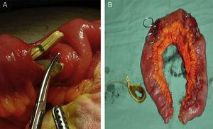 (A) Segment of ileum perforated by the gastric band; (B) complete surgical specimen showing several perforations.