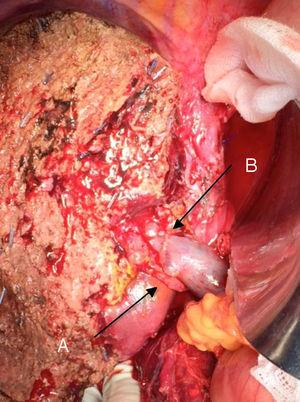 Left hepatectomy for Klatskin's tumour, with resection of the portal vein: (A) right hepatic artery of the upper mesenterium; (B) portal vein.