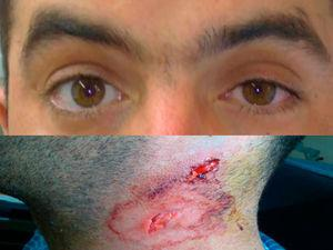 Upper image: anisocoria with miosis of the left eye and ipsilateral ptosis. Lower image: cervical lacerated contusion.