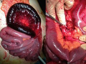 Intraoperative findings: venous ischemia (a) and venous thrombosis in the mesenteric section (b).