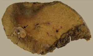 Bile duct dilatation of segment V in the pathology specimen (arrow); metastatic lesion.