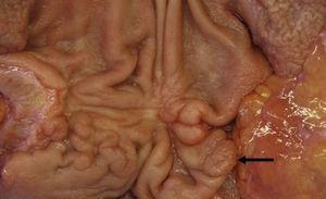 Image of the surgical specimen showing a pyloric tubular adenoma (arrow); the biopsy demonstrated carcinoma in situ.