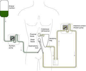 Physiological model for collecting and reinfusing the jejunal fistula discharge associated with enteral nutrition.