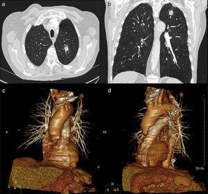 Computed tomography angiography showing a solitary lung nodule in the left upper lobe: (a) axial; (b) coronal. Volumetric reconstructions showing the complex web of bilateral pulmonary vascularization and the nodule in the left upper lobe: (c) anterior view; (d) left lateral view.
