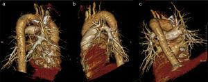 Volumetric reconstruction showing the rotational capability of the images: (a) right lung vascularization pattern, lateral view; (b) left lung vascularization pattern, lateral view and (c) pulmonary vascularization pattern, posterior view.