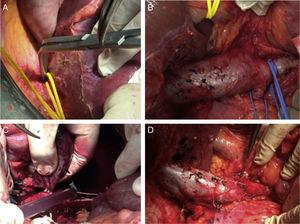 (A) Dissection of the suprahepatic vena cava; (B) piggy-back and dissection of the renal veins and infrarenal vena cava; (C) cavotomy and extraction of the thrombus; (D) cavography.