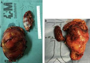 (A) Right renal tumor with thrombosis of the cava (IIIb); and (B) left renal tumor with thrombosis of the cava (IIIc).