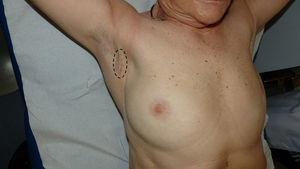 Axillary scar and initial location of the mass (circle); no pathological alterations were detected on physical exploration, except for induration in the right axilla compatible with scarring.