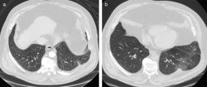 (a) Initial thoracic CT scan demonstrating the protrusion of the lung parenchyma between the left 9th and 10th ribs; (b) follow-up CT, with the image of the lung hernia recurrence between the left 8th and 9th ribs.
