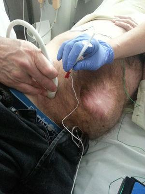 BTX infiltration in a patient under electromyographic control.