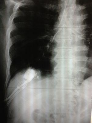 Chest radiograph: the instillation of water-soluble contrast material in the hepatic drain tube is seen in the airway.
