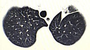 A semisolid lesion is observed in the left upper lobe.