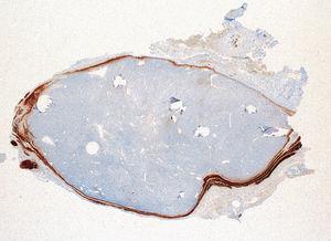 S100 protein identifies the nerve tissue surrounding the adenoma (20×).