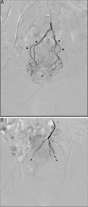 (A) Selective digital subtraction arteriography via microcatheter (white arrow) at the beginning of the superior rectal artery, showing proximal branches (arrowheads) and small distal branches dependent on these arteries (asterisk); (B) post-embolization follow-up: note the absence of overall contrast uptake in the distal rectal territory after the release of the coils (black arrows) and small unobstructed remnant branches (white arrows), which help maintain sufficient blood flow to avoid ischemia.
