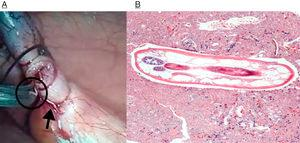 (A) Macroscopic image of the parasites; (B) parasite body at higher magnification. Two receptacles with oocyte corpuscles inside are visible in the left margin (H&E ×40).