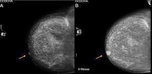 (A) Mammogram of right breast, BIRADS-1; (B) 5-month follow-up of the same breast, BIRADS-2.