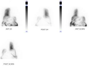 Scintigraphy with Tc-99 demonstrating leakage of radiotracer toward the right hemithorax.