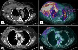 PET/CT chest scan: (A) Multiple bilateral axillary lymphadenopathies, the largest on the right measuring 4cm (arrow), with subcutaneous involvement of both breasts, predominantly right, and ipsilateral pleural effusion; (B) Pathological uptake of 18F-FDG (fludeoxyglucose) in the right breast, left breast, right lower sulcus and bilateral pulmonary parenchyma (millimeter nodules) related with the lymphomatous infiltration; (C) Decrease in the overall size of the right breast with air bubbles in its interior related with necrosis and reduction of axillary lymphadenopathies, the largest right measuring 2.9cm; (D) Morpho-metabolic improvement of the lymph node, pulmonary and subcutaneous cellular tissue involvement, suggestive of a good response to treatment.