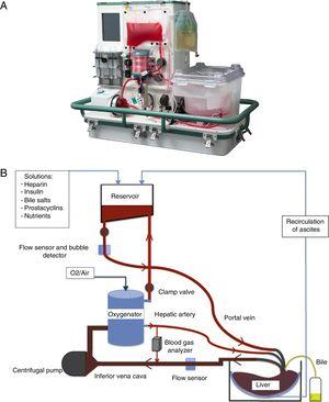 (A) Normothermic machine perfusion (NMP) OrganOx metra®. (B) Diagram of NMP function.