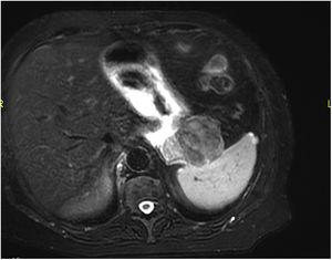 Magnetic resonance imaging showing homogeneous enhancement of the lesion, appearing mainly hypointense both in T1 and T2.