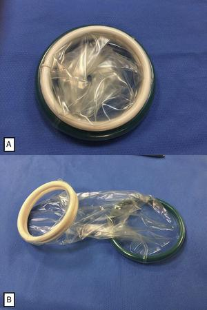 (A) Alexis® retractor device, size XS (4cm in diameter), comprised of 2 flexible rings joined by a polymer membrane; (B) Alexis® retractor device, unrolled before placement.