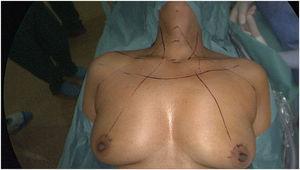 Placement of the patient and anatomic reference points.