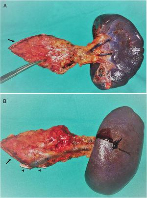 Left pancreatosplenectomy piece: (A) anterior side; (B) posterior side. Asterisk: neuroendocrine tumor, also indicated with the Pean forceps. Arrow: edge of the pancreatic division; SV: splenic vein; SA: splenic artery: both sealed with hem-o-lok clips (arrowheads).