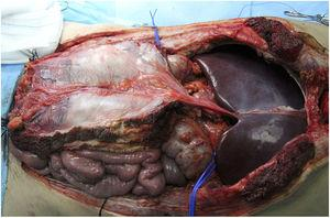 Example of vascularized fascia extraction at our hospital; in the end, its use was not necessary.