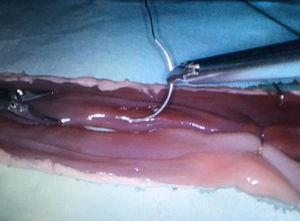 Start of supporting sutures for the manual side-to-side entero-enteric anastomosis with ex vivo porcine viscera in a laparoscopic endotrainer.