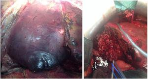 Intraoperative image of the last surgical intervention where an extensive liver necrosectomy was done to complete the right hepatectomy.
