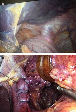 (A) Intraoperative finding of a giant hiatal hernia; (B) the hernia defect was closed with continuous barbed suture.