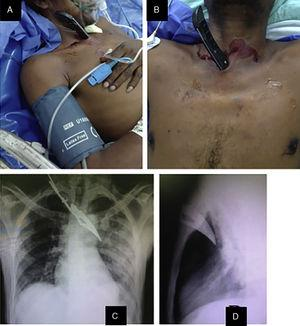 (A) Sharp object embedded at the stabbing site, immediately left of the manubrium sterni (lateral view); (B) anterior view; (C) posteroanterior chest radiograph showing left hydropneumothorax and the sharp object embedded in the left hemithorax; (D) lateral radiograph of the thorax, where the object seems not to have reached any vital structures.
