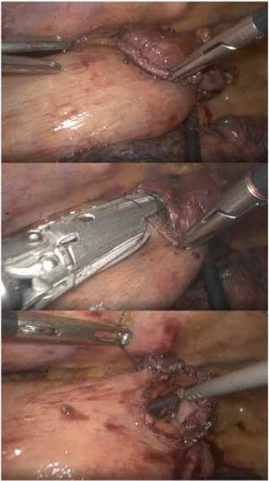 Mechanical side-to-side anastomosis in prone in the Ivor-Lewis. 1-1: preparation; 1-2: placement of the linear endostapler prior to stapling; 1-3: preparation for manual closure.