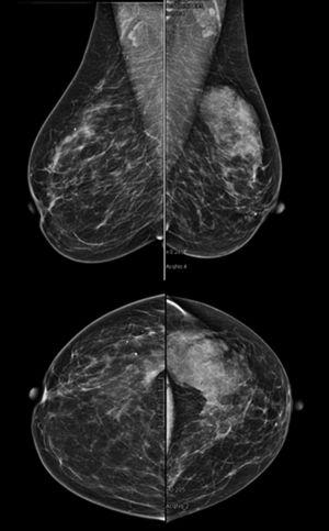 Mammogram showing a nodular mass in the upper-outer quadrant of the left breast, partially well-outlined and identified as BIRADS IVa.