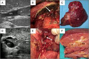 Examples of en bloc left hepatectomy (case 1, A–C) and lateral sectorectomy with the 'peeling off' technique (case 2, D–F). Case 1. A) Intraoperative ultrasound of the lateral sector showing the front of the tumor thrombus (tt) originating in the portal branch of segment II, penetrating partially towards the lumen of the left portal vein (LPV), leaving free the portal branches of segment IV (P4); B) with an adequate liver remnant, en bloc resection is executed (left portal vein stump indicated with arrow); C) Left hepatectomy (segments II-III-IV). Case 2. D) In this other case, the intraoperative ultrasound of the lateral sector shows the tumor thrombus (tt) that, from segment III, completely crosses the lumen of the left portal vein (LPV) and enters the portal vein of segment IV (P4); E) Given the insufficient remnant volume to perform a left hepatectomy, the peeling off technique allows us to peel off the front of the tumor thrombus through a venotomy in the umbilical sector of the LPV. The dashed arrow indicates the tt appearing through the P3 (portal vein of segment III); F) Lateral sectorectomy piece, with tumor thrombus (tt) completely occupying the portal lumen.