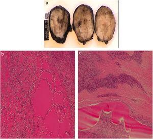 Pathology study: A) An ovoid formation is observed, corresponding with a pseudo-encapsulated multinodular mesenchymal tumor; B and C) Myxoid-looking foci are identified, compatible with malignant ossifying fibromyxoid tumor.