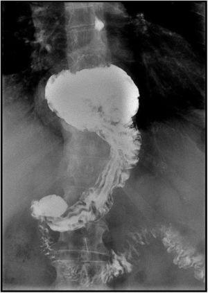 Barium transit of hiatal hernia.