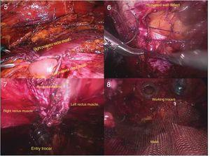(5) Closure of the posterior plane defect; (6) suture of the defect on the linea alba; (7) linea alba restored; (8) placement of the prosthetic mesh in the dissected cavity.
