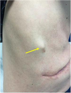 Subcutáneous nodule en the right ribcage.