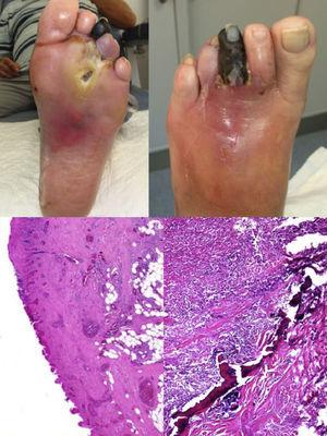 Upper images: top left, plantar view of foot showing an ulcer on the head of the 3rd metatarsal, with marked perilesional reddening and a necrotic 3rd toe. Ulcer was exposed after delamination of the surrounding hyperkeratosis, which is typical in neuropathic lesions. Top right, dorsal view of foot showing reddening of midfoot and 3rd toe necrosis. Lower images: bottom left, blood vessel congestion and dilation, as well as granulation tissue. Ulceration and a necrotic appearance of epidermis and dermis are also seen. Bottom right, intensive, predominantly eosinophilic inflammatory infiltrate with eosinophils involving bone tissue.