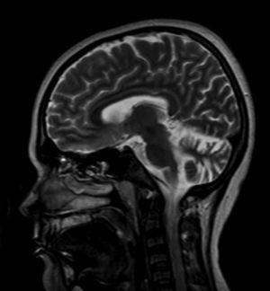 Magnetic resonance imaging of the brain with gadolinium contrast showing increased cerebellar width and depth consistent with cerebellar atrophy.
