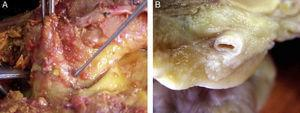 Location of epicardial adipose tissue. (A) The close anatomical relation between epicardial fat and the myocardium is seen. (B) Epicardial adipose tissue around one coronary artery. Note the absence of fascia or similar tissues separating epicardial adipose tissue from these structures.