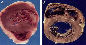 (A) The heart of a 48-year-old obese patient with type 2 diabetes who died from acute myocardial infarction. (B) The heart of a 45-year-old patient with no risk factors who died from violent causes. Note the great thickness of epicardial adipose tissue in patient A as compared to patient B.