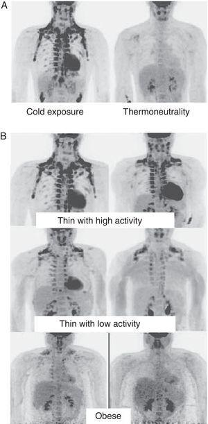 WAT distribution and activity in humans detected by positron emission tomography (PET) with 18F-FDG. (A) Increased TAM activity in a thin individual exposed to low temperature (16°C) or under thermoneutral conditions. (B) TAM activity in thin and obese individuals exposed to low temperature (16°C).