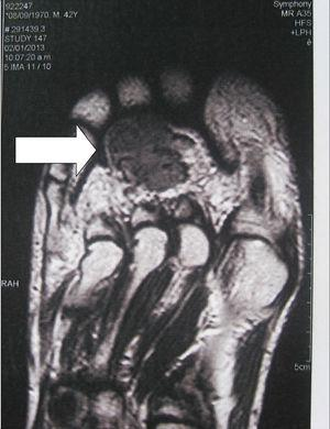 A phosphaturic mesenchymal tumour located in the sole of the foot. MRI shows a heterogeneous lesion of low intensity and irregular margins approximately 2cm×3cm in size.