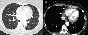 A 50-year-old woman with signs and symptoms of fever and retrosternal pain with a pericardial rub on auscultation. A CT scan showed ground-glass opacities (A) in relation to mild COVID-19 involvement (circles) and mild pericardial effusion (arrow tips in B).
