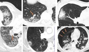 Other radiological patterns on CT in patients with COVID-19: A) Crazy-paving pattern. B) Vascular thickening inside lesions. C) Halo sign. D) Vacuolisation. E) Reversed halo sign. F) Spontaneous pneumothorax.