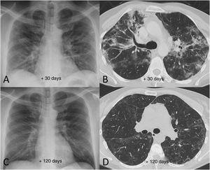 Example of good radiological recovery in terms of chest X-ray and computed tomography findings (lung parenchyma window) in a 45-year-old man with severe SARS-CoV-2 pneumonia after hospital discharge. A and B) Radiological tests 30 days after the onset of symptoms show patchy consolidation along with areas of ground-glass opacification and loss of volume. C and D) Radiological tests 120 days after onset of symptoms show radiological improvement with resolution of the consolidation and a reduction in the extension of the ground-glass opacification, with persistence of slight peripheral reticular interstitial involvement.