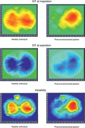 Electrical impedance tomography (EIT) images in a healthy individual and in a patient subjected to pneumonectomy (inspiration, expiration, and variability images). The inspiration and expiration images show impedance variation with respect to a reference. The variability images in turn correspond to the standard deviation of each pixel within a time interval (30s).