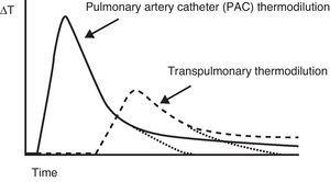 Comparison of the thermal variation curve over time registered by the thermistor of a pulmonary artery catheter (solid line) and the arterial thermistor of the PiCCO system (broken line). Note the difference in transit time due to the distance from the injection point to both temperature sensors.